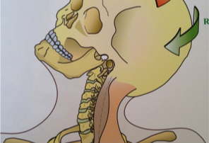 Head on cervical spine