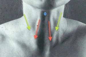 swallowing difficulties after injections